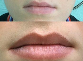 Natural Lippen Pigmentierung