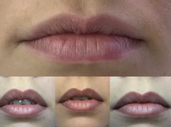Natural Lippen Pigmentierung 2