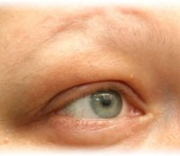 Haarlospatientin Permanent Make Up vorher
