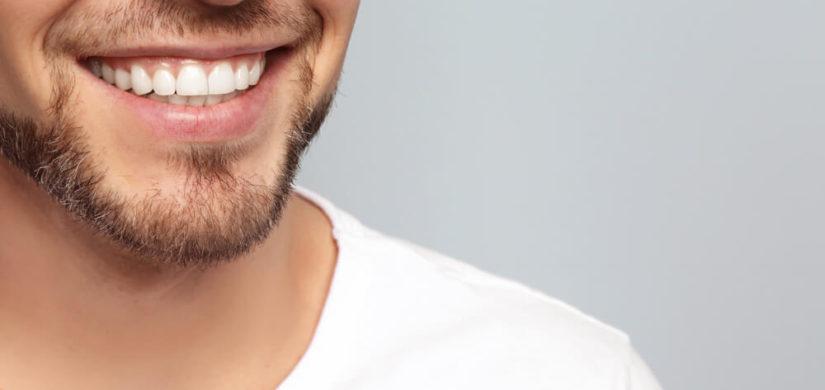 Kosmetisches-Bleaching Zahn
