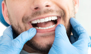 Kosmetisches-Bleaching-Zahnaufhellung-