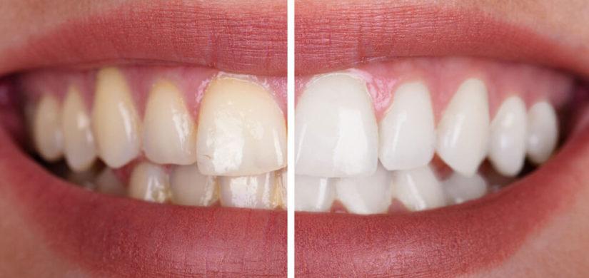 Kosmetisches-Bleaching-vorher-nachher-2