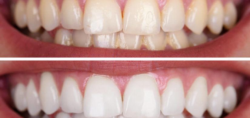 Kosmetisches-Bleaching-vorher-nachher-3